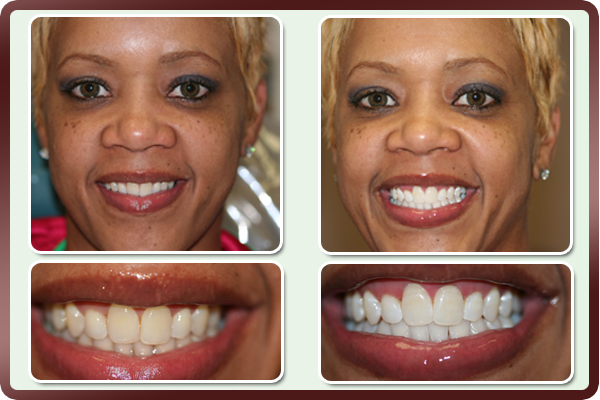 Teeth Whitening Prestonwood Dental